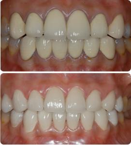 Bọc răng sứ Vita phục hình răng đẹp giá Việt Nam, chất lượng chuẩn 1